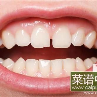 吃槟榔牙齿黑怎么处理呢?