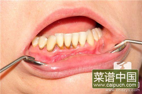 补牙做牙冠
