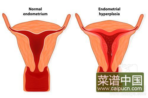 节育环在子宫内的坏处